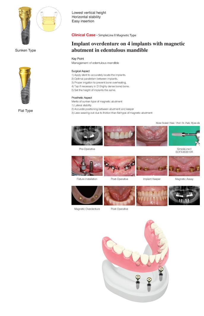 Грудные импланты polytech официальный сайт